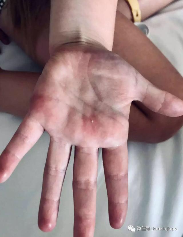 罕见!新加坡5岁女孩游泳后全身红肿,刺痛无比......