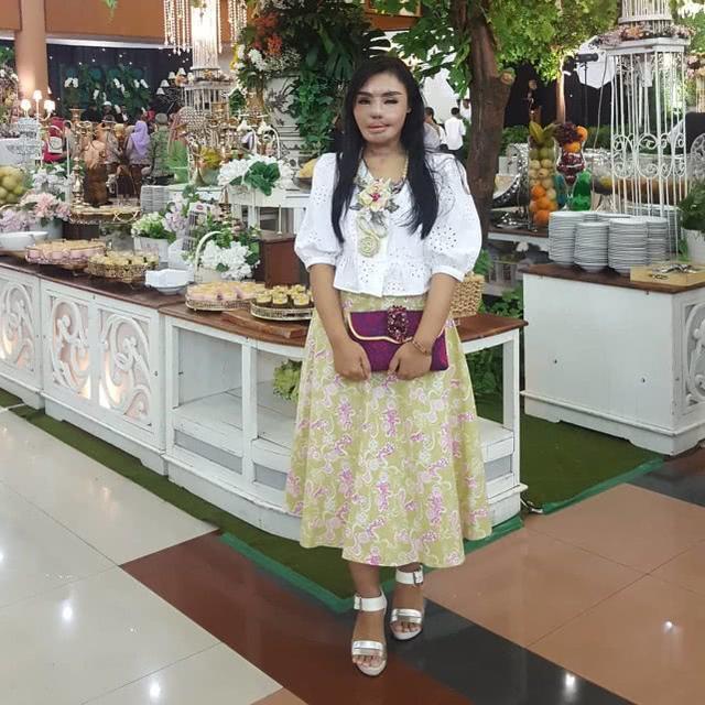 印尼女子因太漂亮被丈夫泼硫酸毁容,历经17次手术如今成功创业