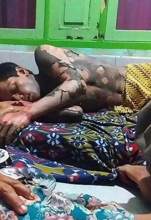 印尼女子因丈夫拒绝告诉手机密码,残忍将其放火烧死